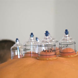 Chiropractic Tempe AZ Cupping